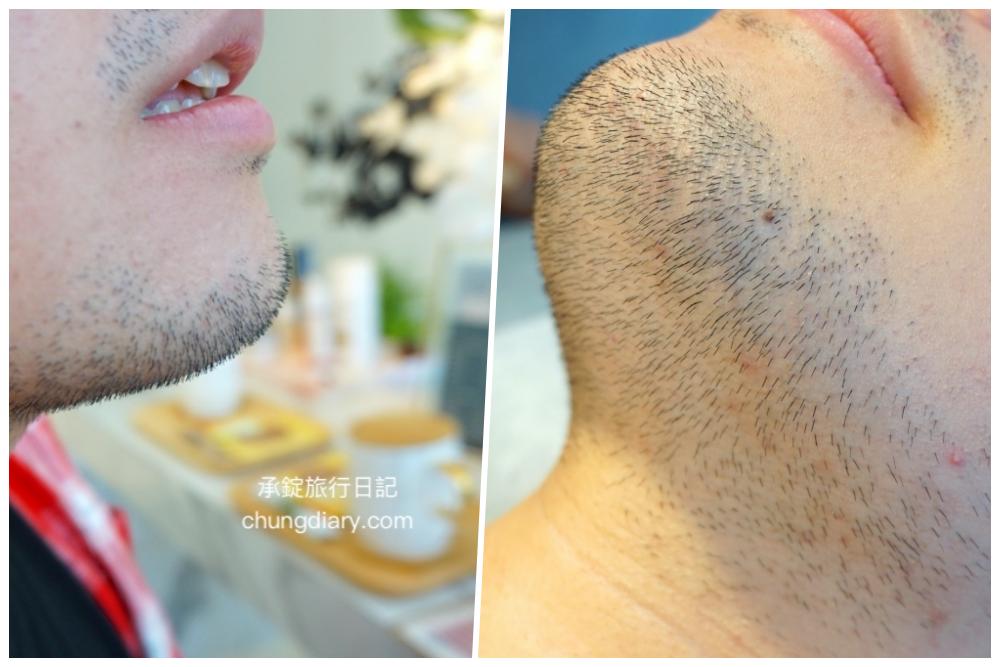 熱蠟除毛前的鬍子-愛甲玩美男性熱蠟除毛鬍子